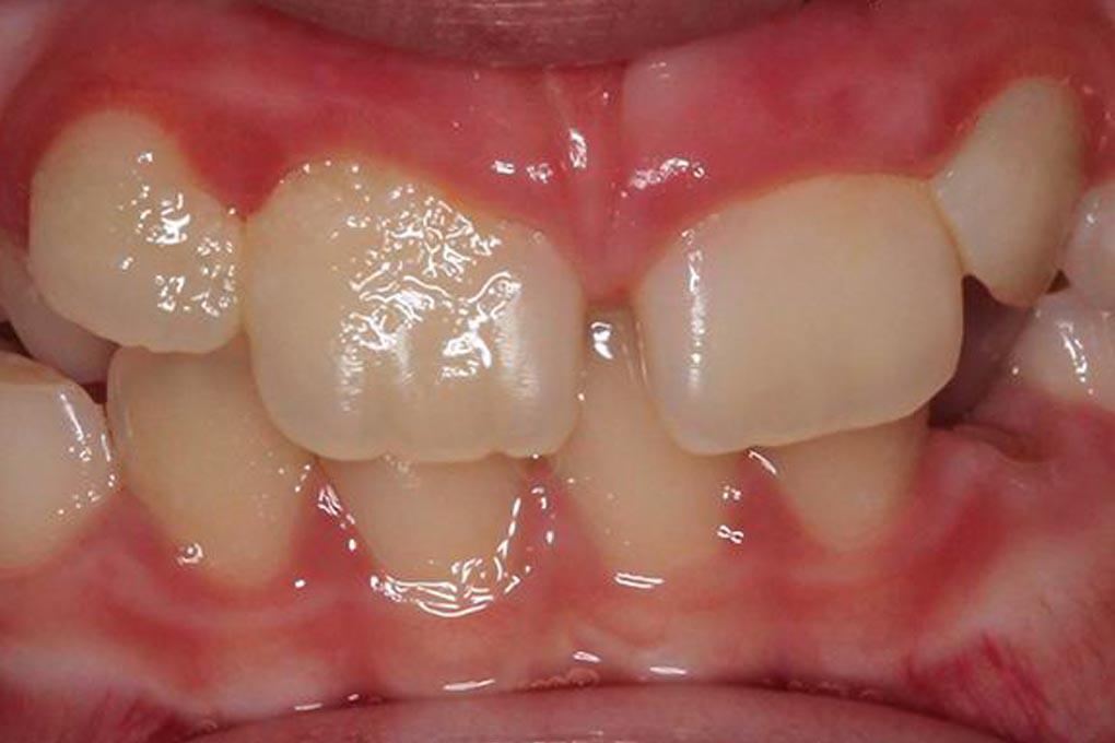 Ortodoncia removible en niños