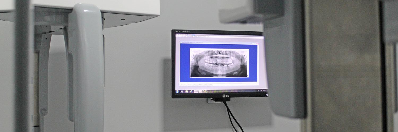 Radiografía dental por ordenador