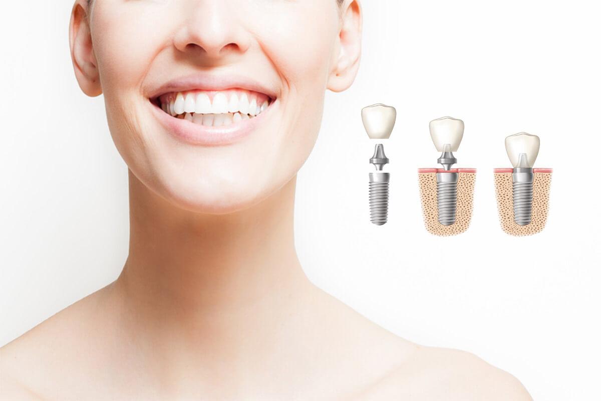 Cirugía de implante dental